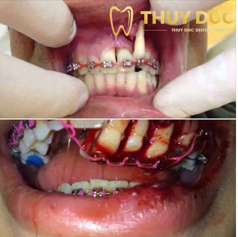 Chân răng bị bật ra khỏi xương hàm, tiêu cụt chân răng 1