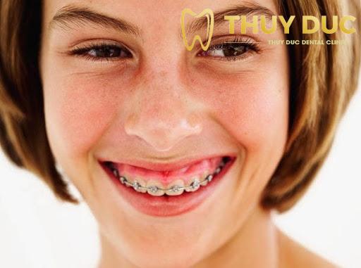 Bị hở lợi nặng hơn sau khi niềng răng 1