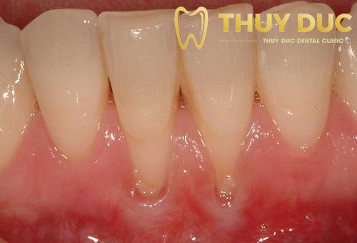 Tụt lợi sau khi niềng răng 1
