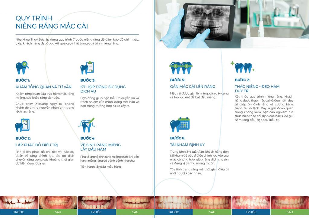 Quy trình niềng răng mắc cài - Nha khoa Thúy Đức 1