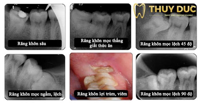 Các trường hợp cần phải nhổ bỏ răng khôn 1