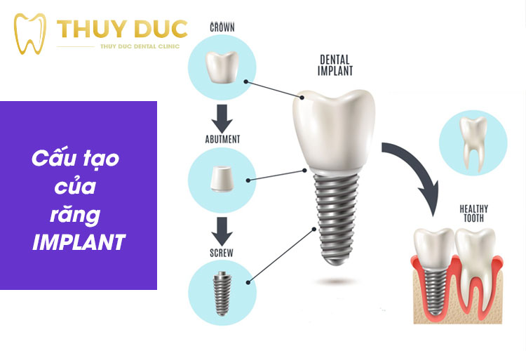 Phương pháp trồng răng implant 1