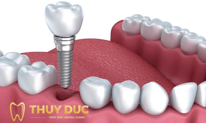Trồng răng giả có đau không? Cách giảm đau sau khi trồng răng 1