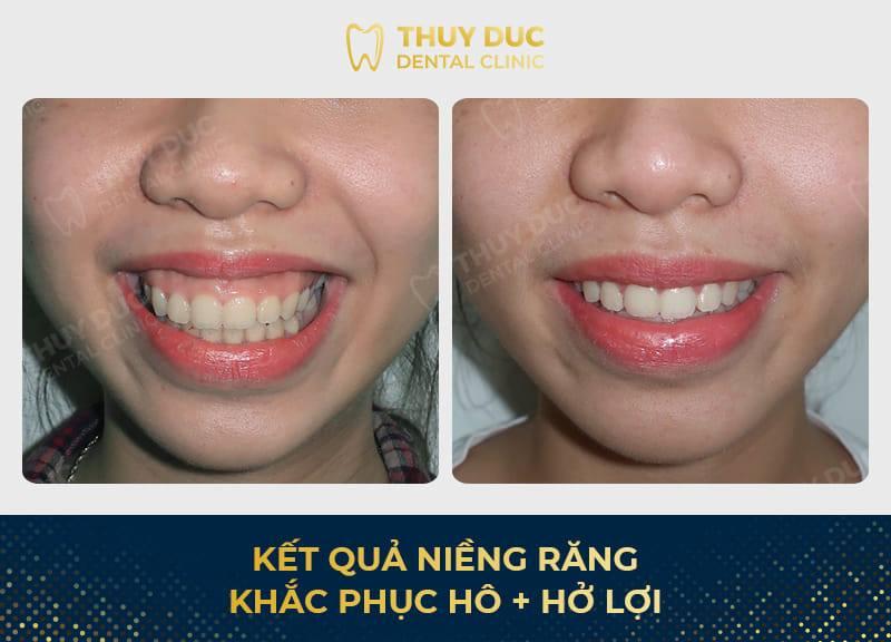 Tổng hợp các kết quả niềng răng bởi bác sĩ Đức AAO 11