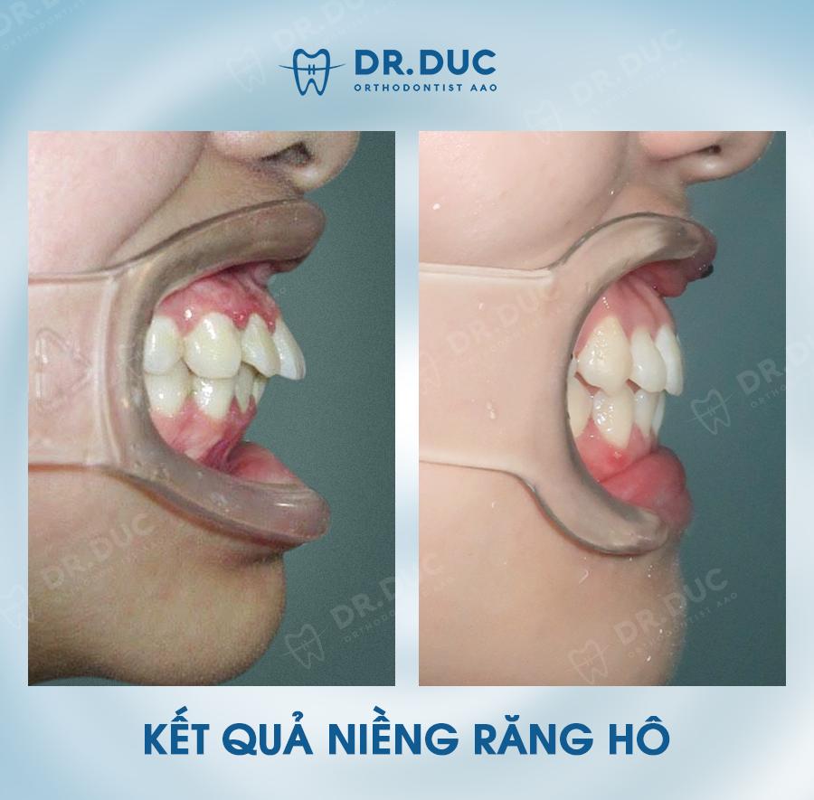 Tổng hợp các kết quả niềng răng bởi bác sĩ Đức AAO 14