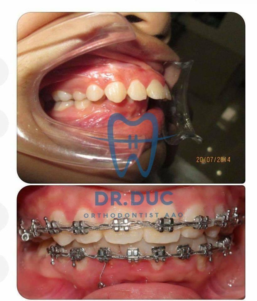 Tổng hợp các kết quả niềng răng bởi bác sĩ Đức AAO 17