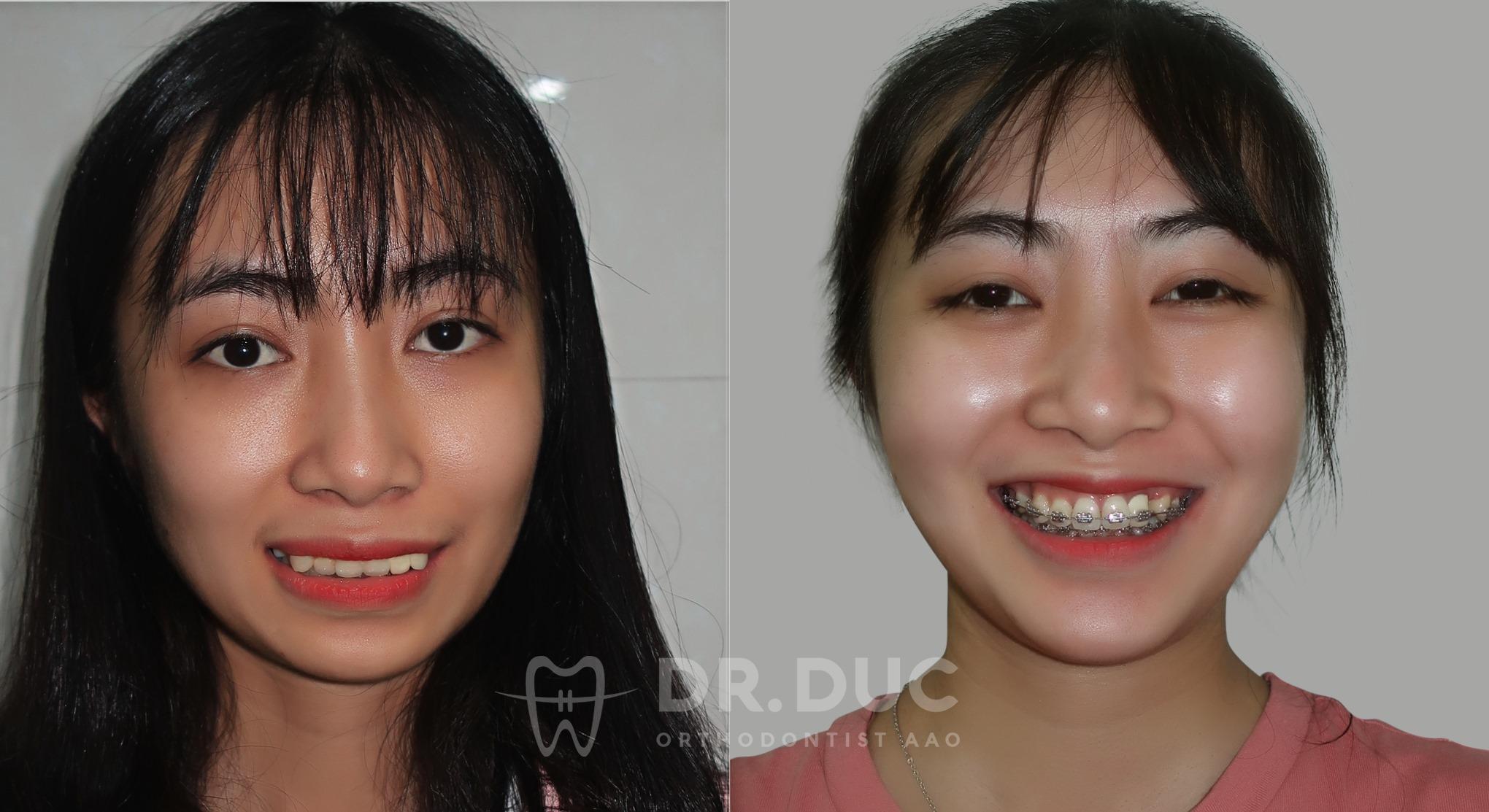 Tổng hợp các kết quả niềng răng bởi bác sĩ Đức AAO 18