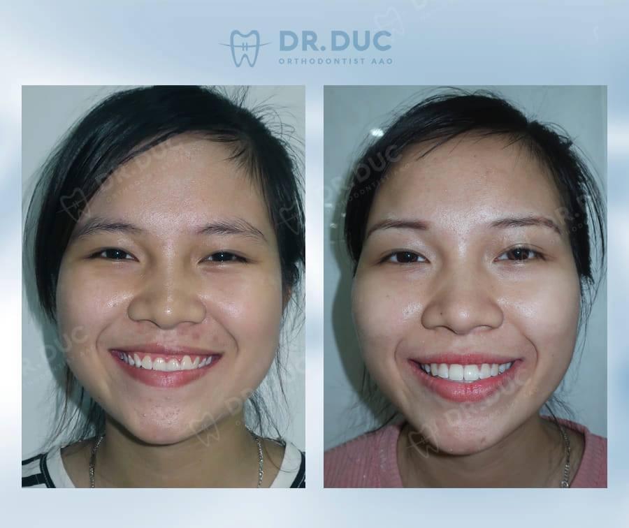 Tổng hợp các kết quả niềng răng bởi bác sĩ Đức AAO 19