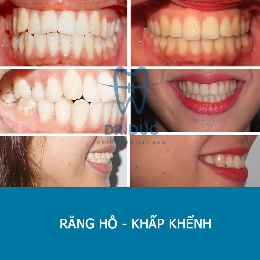 Tổng hợp các kết quả niềng răng bởi bác sĩ Đức AAO 20