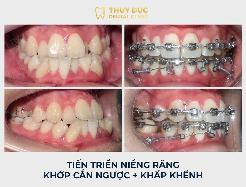 Tổng hợp các kết quả niềng răng bởi bác sĩ Đức AAO 21