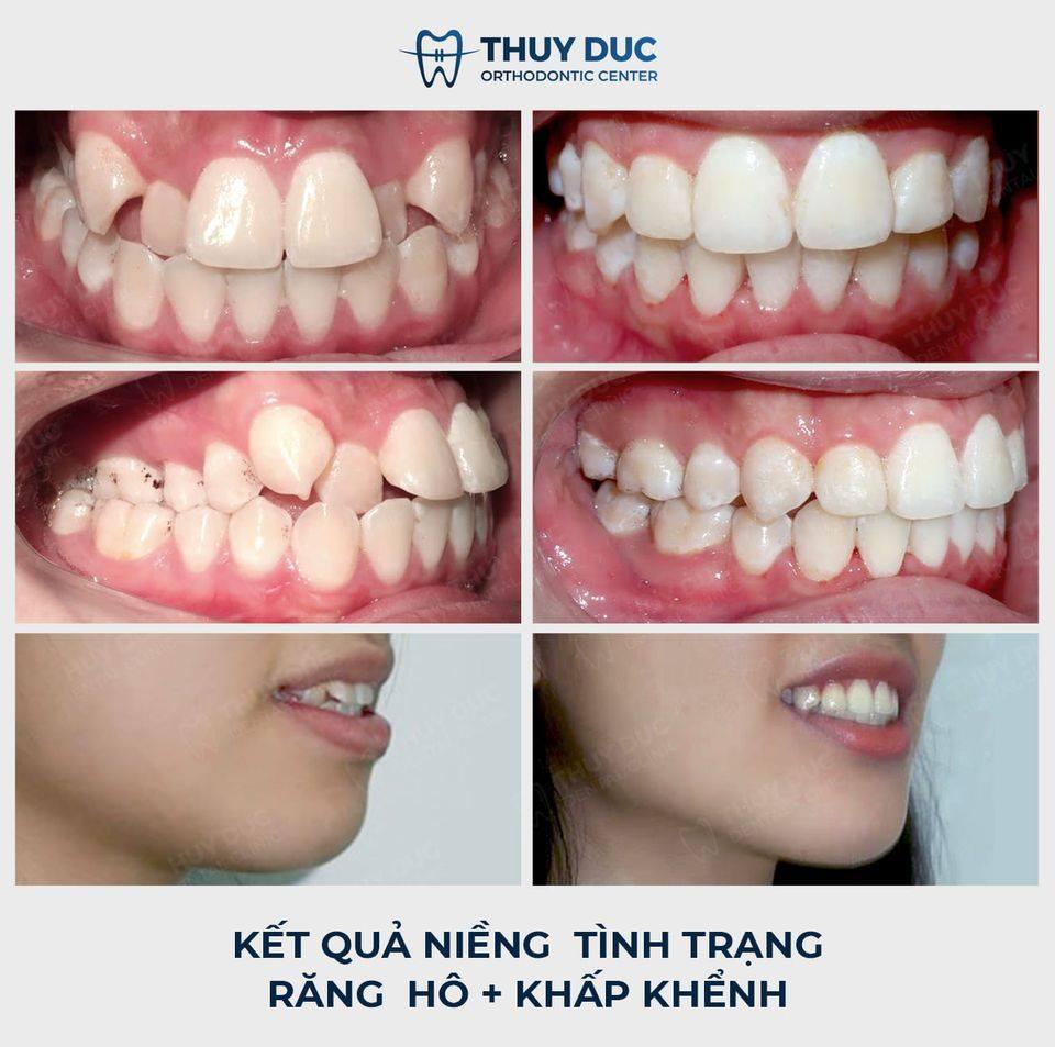 Tổng hợp các kết quả niềng răng bởi bác sĩ Đức AAO 22