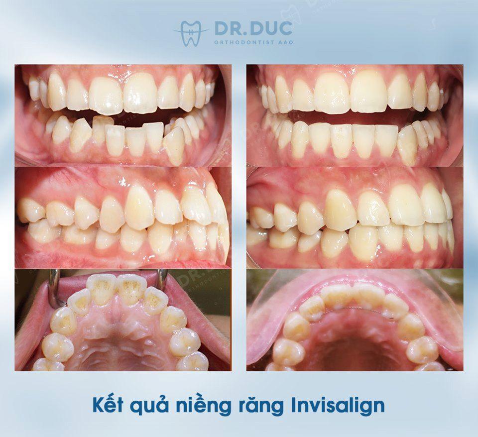 Tổng hợp các kết quả niềng răng bởi bác sĩ Đức AAO 24