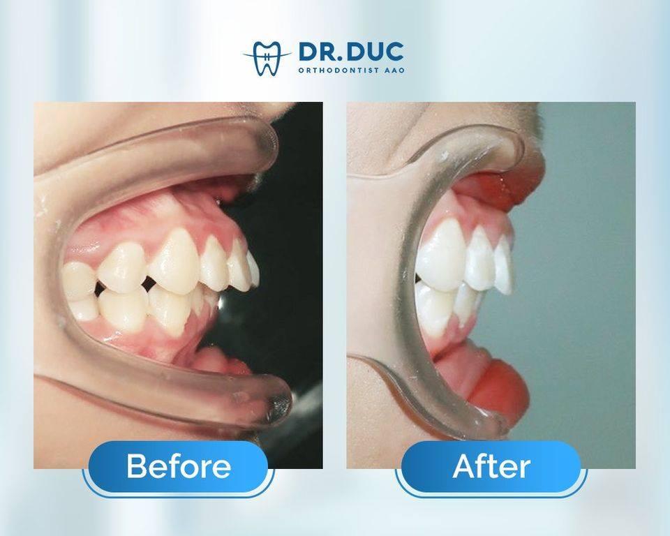 Tổng hợp các kết quả niềng răng bởi bác sĩ Đức AAO 26