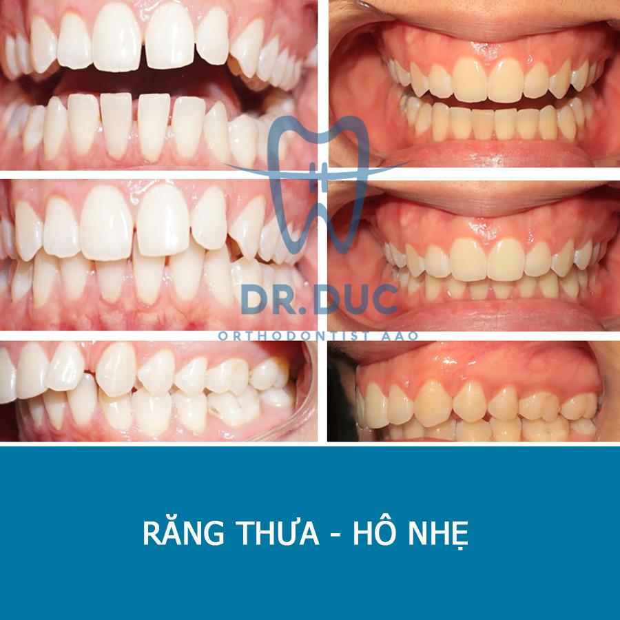 Tổng hợp các kết quả niềng răng bởi bác sĩ Đức AAO 27