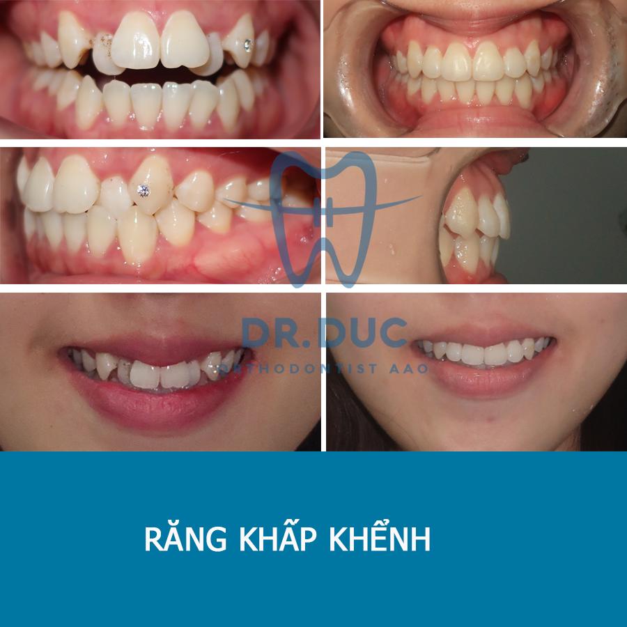 Tổng hợp các kết quả niềng răng bởi bác sĩ Đức AAO 28