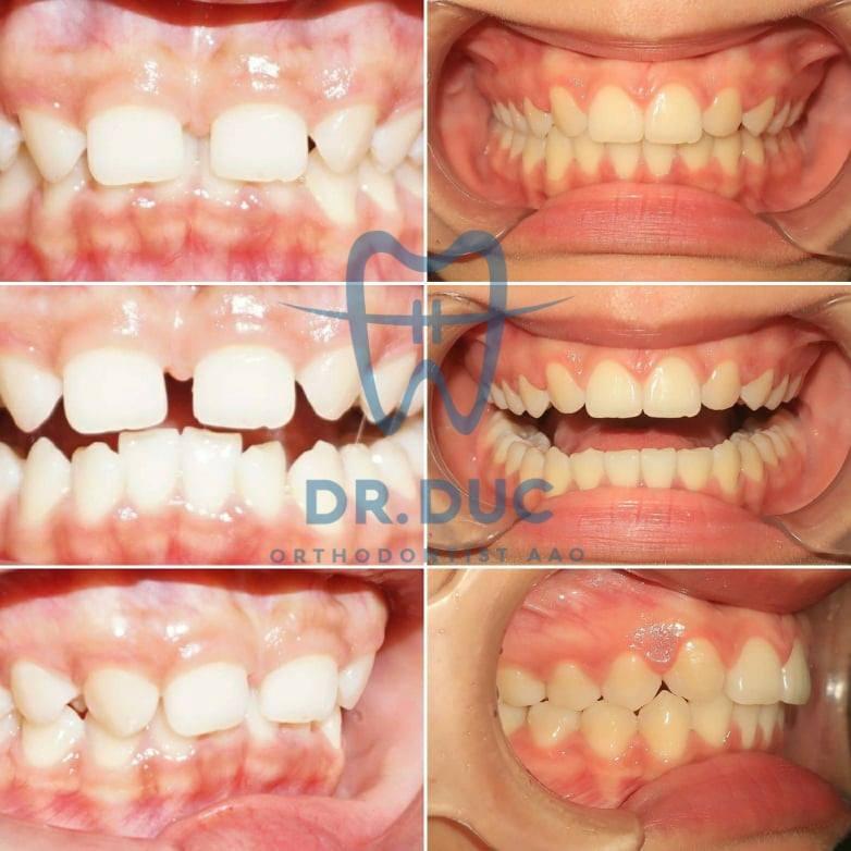Tổng hợp các kết quả niềng răng bởi bác sĩ Đức AAO 29
