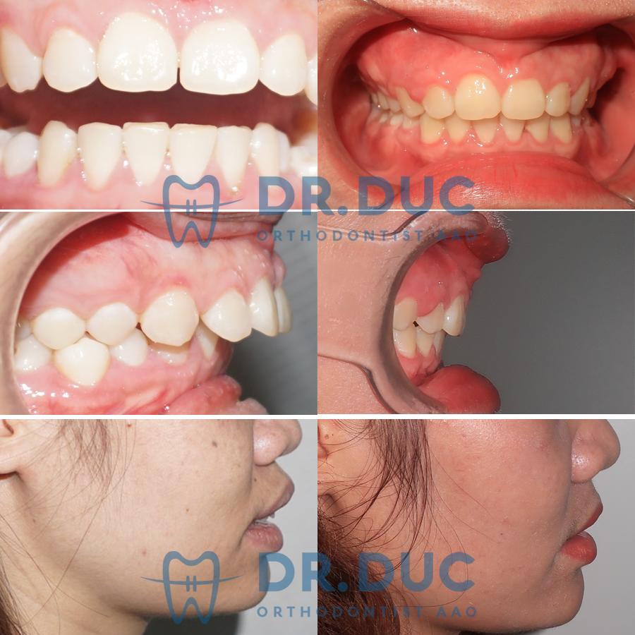 Tổng hợp các kết quả niềng răng bởi bác sĩ Đức AAO 30