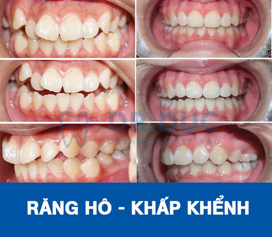 Tổng hợp các kết quả niềng răng bởi bác sĩ Đức AAO 31
