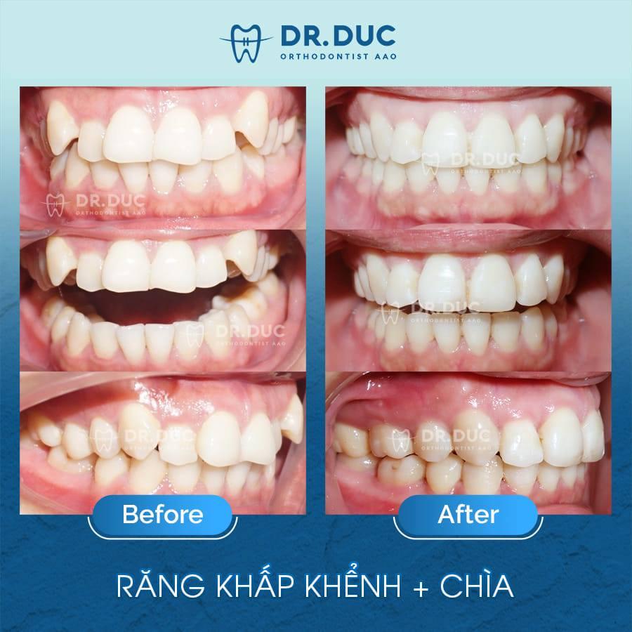 Tổng hợp các kết quả niềng răng bởi bác sĩ Đức AAO 32