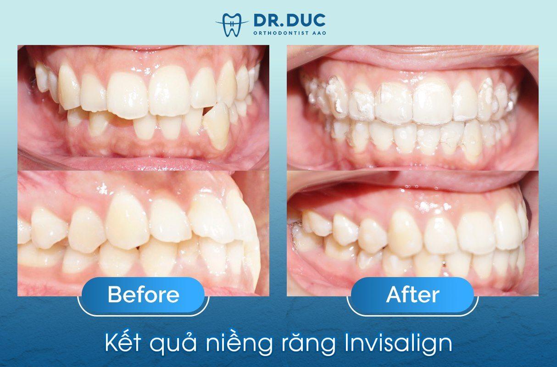 Tổng hợp các kết quả niềng răng bởi bác sĩ Đức AAO 33