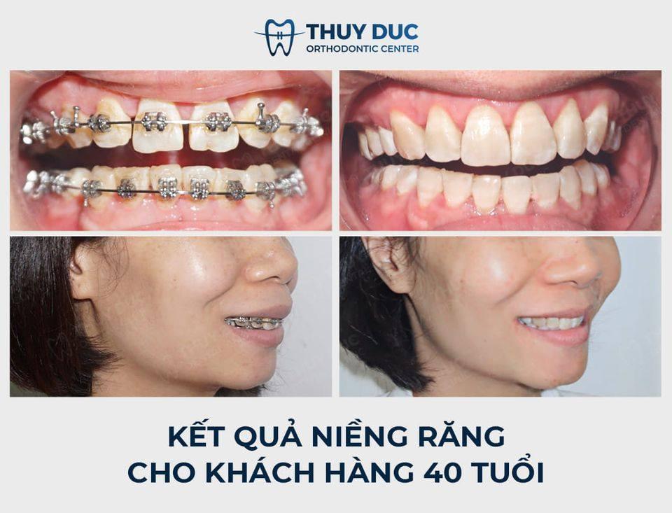Tổng hợp các kết quả niềng răng bởi bác sĩ Đức AAO 35