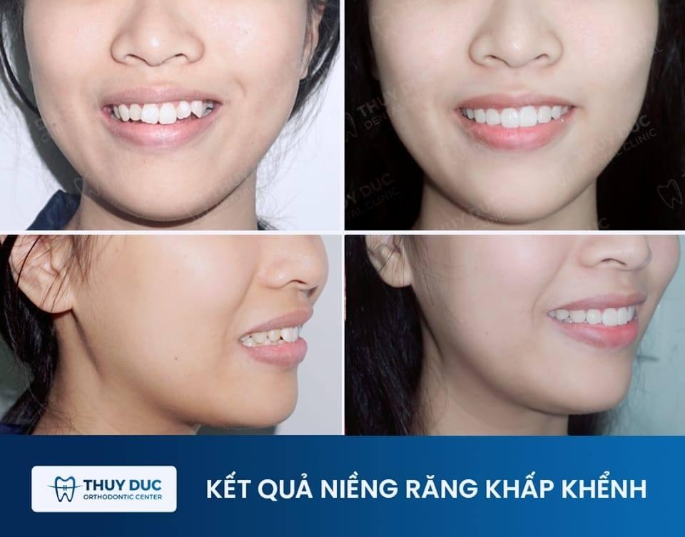 Tổng hợp các kết quả niềng răng bởi bác sĩ Đức AAO 7