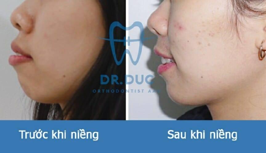 Tổng hợp các kết quả niềng răng bởi bác sĩ Đức AAO 8