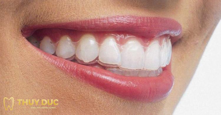 Khay niềng không gắn cố định vào răng 1
