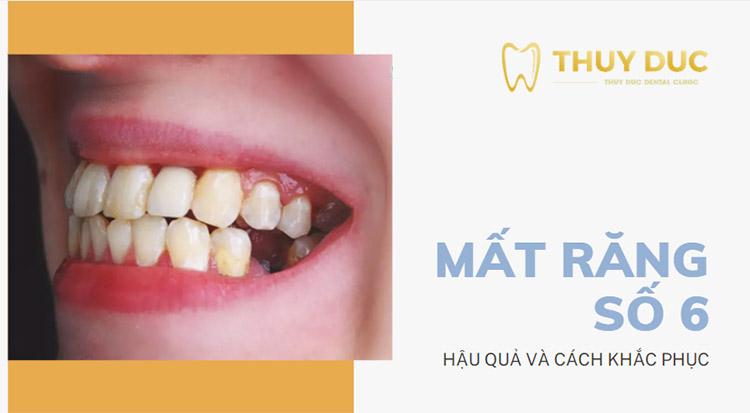 Mất răng số 6 có ảnh hưởng gì? Cách khắc phục nào hiệu quả? 1