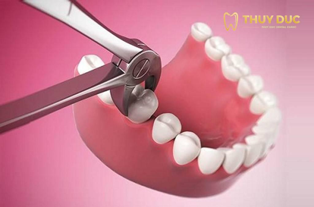 Tại sao nhổ răng khôn thường bị sưng mặt? 1