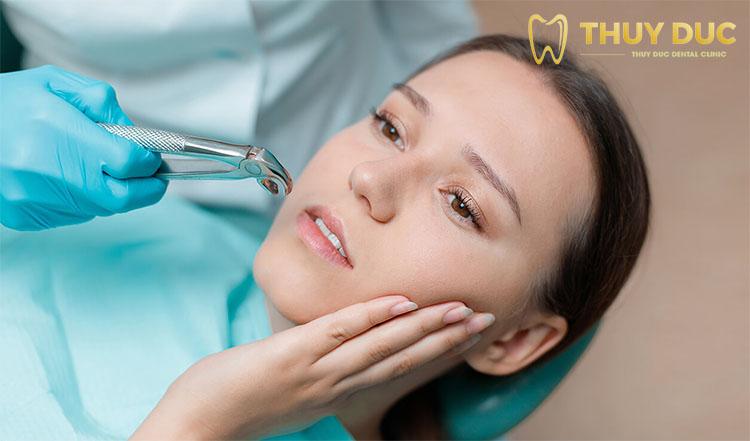 Tất cả lưu ý bạn nhất định phải biết trước - sau nhổ răng khôn 1