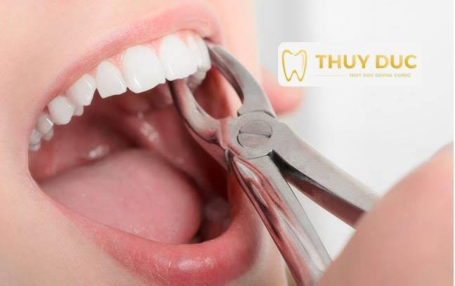 Thời điểm nào thích hợp nhất để nhổ răng khôn? 1