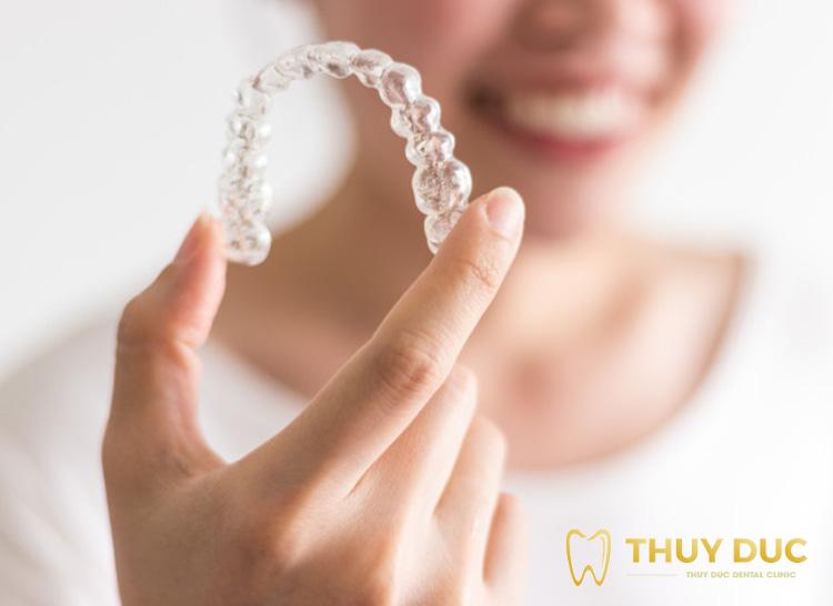 Niềng răng trong suốt Invisalign là gì? 1