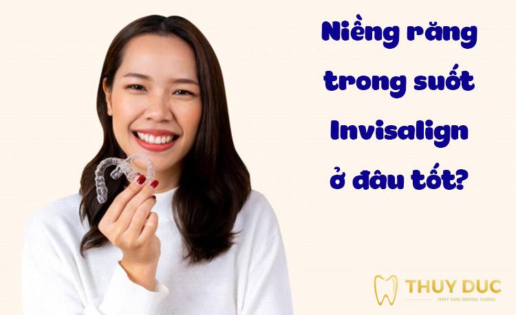 Niềng răng trong suốt Invisalign ở đâu tốt? Địa chỉ chuẩn nhất Hà Nội 1