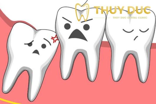 Thế nào là răng khôn mọc lệch? 1