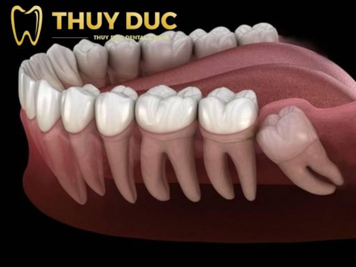 Nhổ răng khôn có nhanh không? Bao lâu thì lành? 1