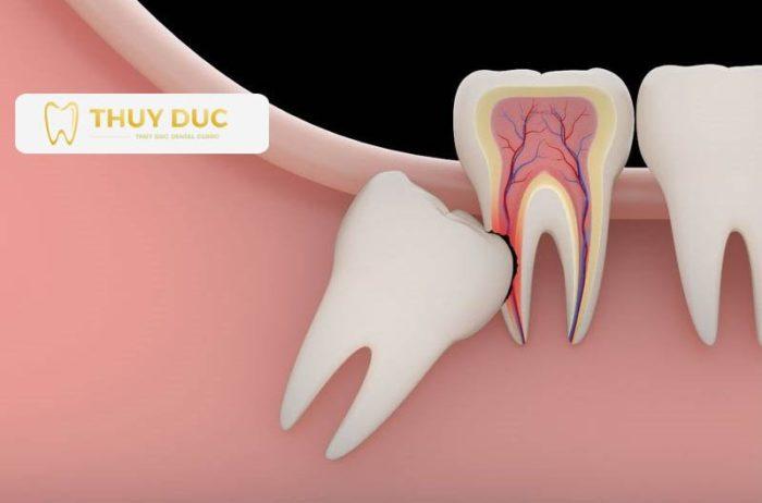 Răng khôn gây sốt, viêm và sưng nướu 1