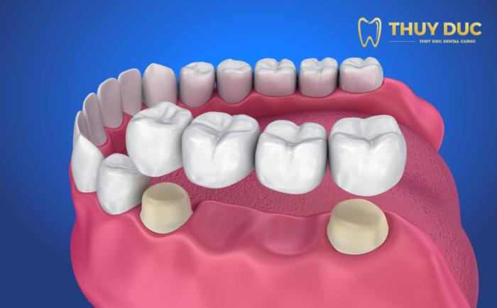 Ưu điểm của trồng răng bắc cầu 1