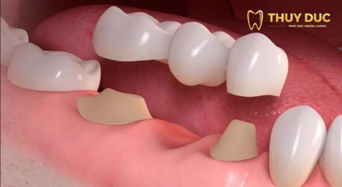 Trồng răng bắc cầu là gì? Có nên không? 1