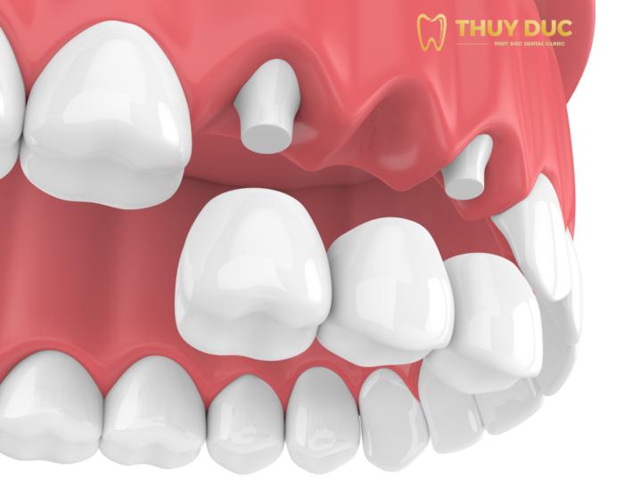 Trồng răng bắc cầu sứ có an toàn không? 1
