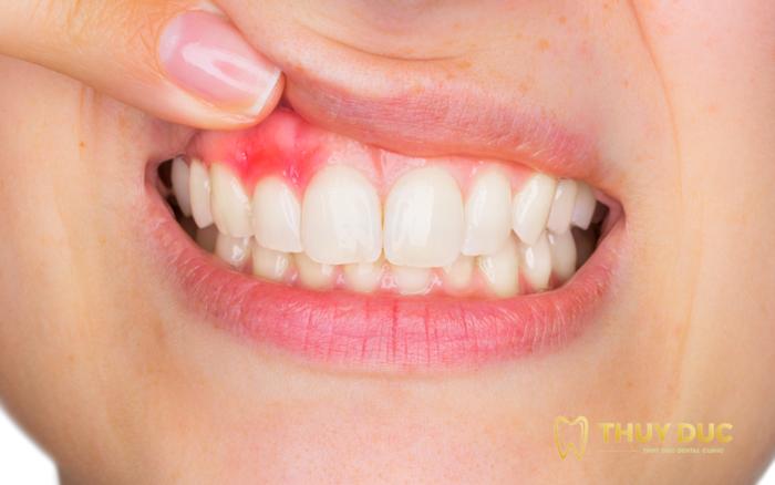 Trồng răng giả có làm ảnh hưởng tới sức khỏe hay không? 1