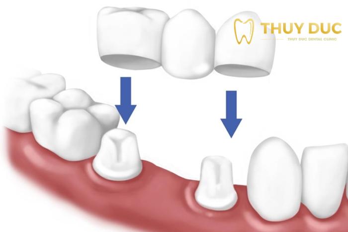 Làm cầu răng sứ 1