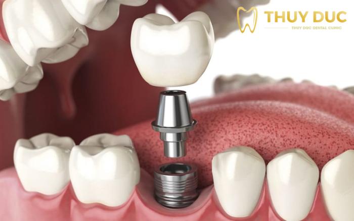 Trồng răng giả có ảnh hưởng gì tới sức khỏe không? 1