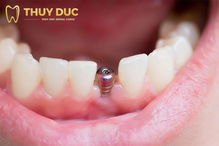 Trồng răng giả có đau không? 1
