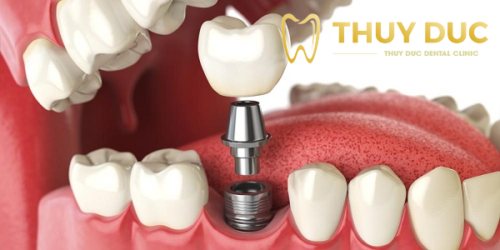Trồng răng hàm loại nào tốt? Giá bao nhiêu? 1