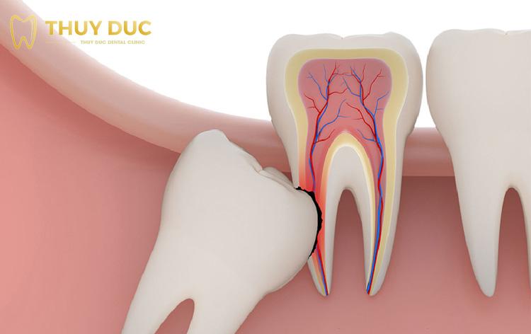 Các trường hợp nên nhổ răng khôn siêu âm 1