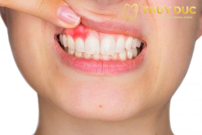 Các bệnh về nướu, sâu răng 1