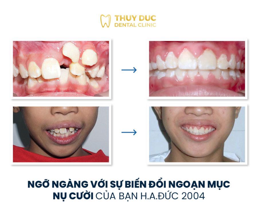 Tổng hợp các kết quả niềng răng bởi bác sĩ Đức AAO 3