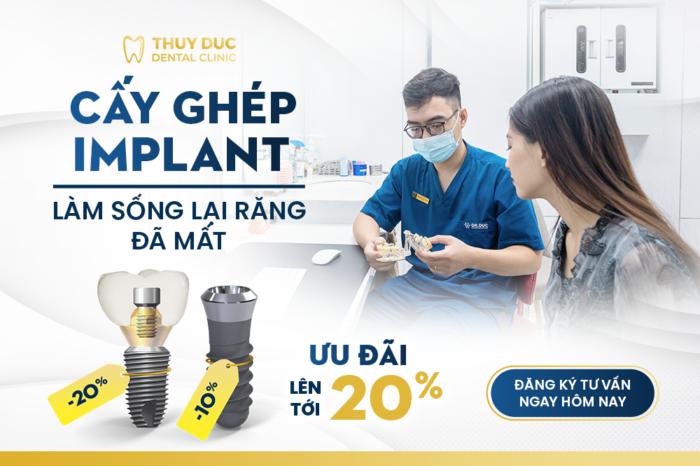 Ưu điểm của trụ implant Dentium Hàn Quốc 1