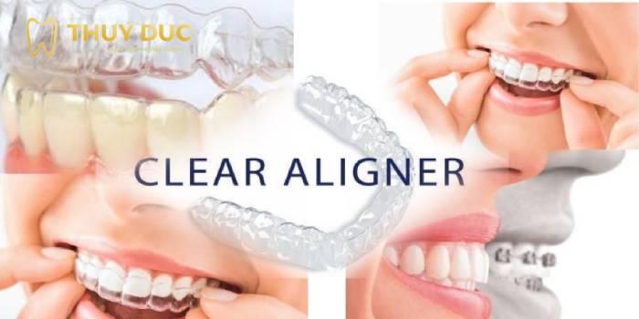 Niềng răng 3D Clear Aligner 1